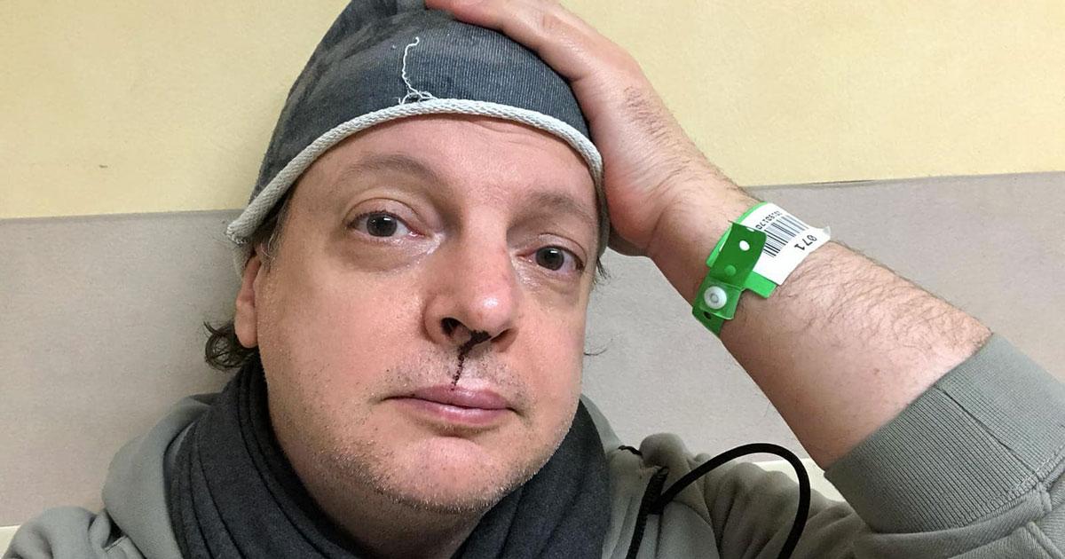 Il comico Dado è stato picchiato dallo stalker della figlia, ecco il suo messaggio