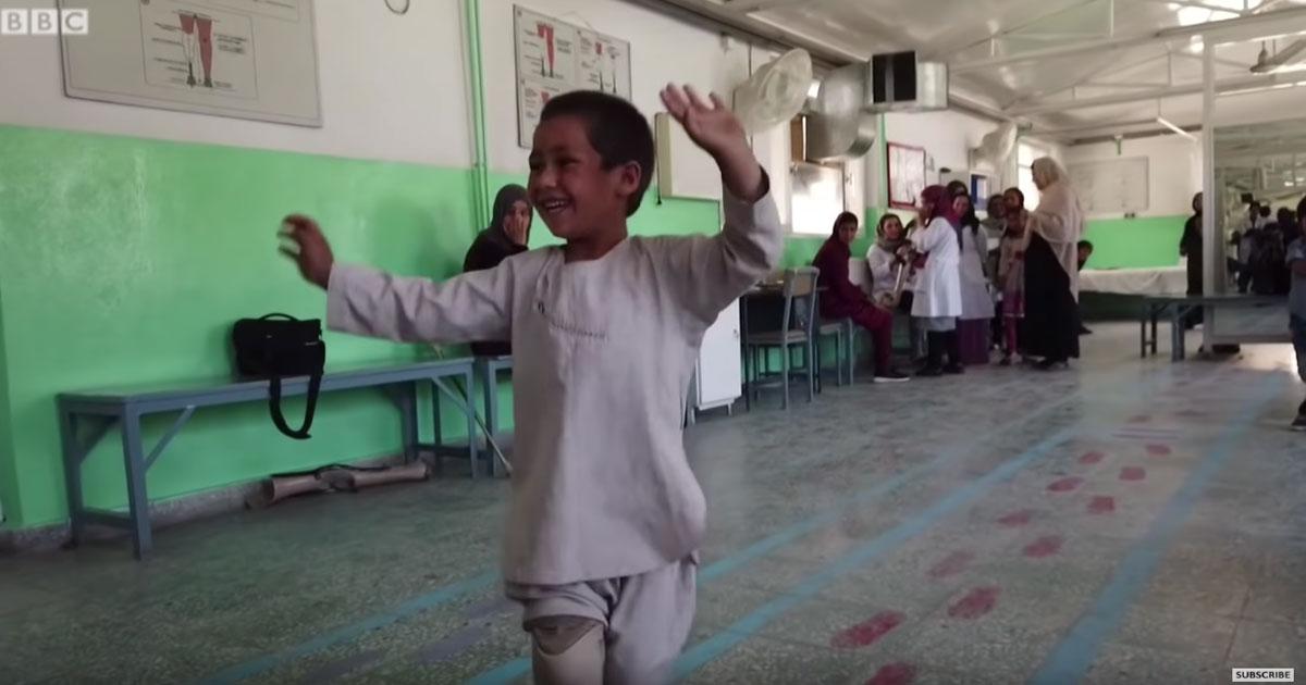 Il bambino torna a danzare grazie ad una protesi: il video è commovente
