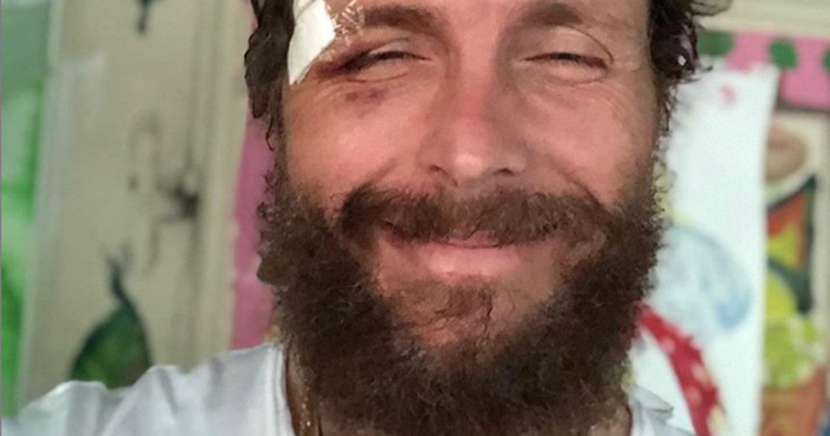 Jovanotti: la foto con i cerotti preoccupa i fan, ecco cosa gli è successo