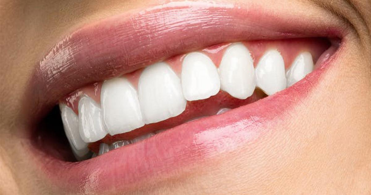 Quando è meglio lavarsi i denti, prima o dopo la colazione?
